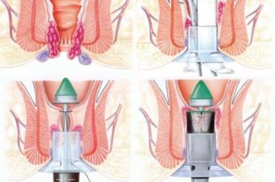 phẫu thuật cắt trĩ theo phương pháp longo